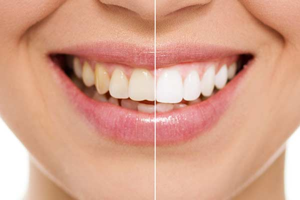 Before and after photo showing teeth whitening